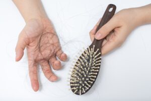 hair loss specialist lehigh valley